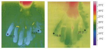 Termofotografi af en hånd i koldt vand uden brug af Ginkgo