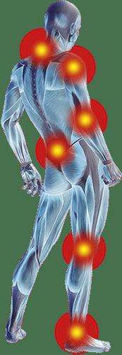 Områder hvor FIT Smerteplaster kan anvendes